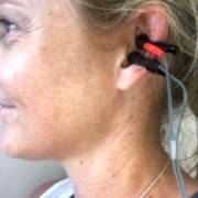 Vagus Nerve Stimulation at No More Niggles